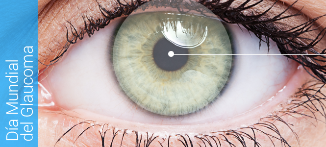 Día Mundial Glaucoma 2017
