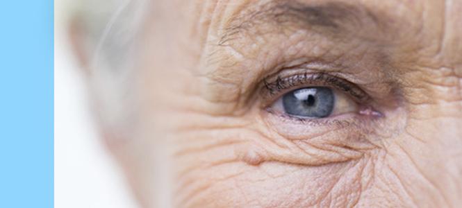 Un trasplante de células madre logra detener, por primera vez, la degeneración macular