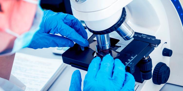 Células madre para hacer más seguras las transfusiones de sangre en pacientes con anemia falciforme