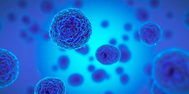 El trasplante de células madre muestra resultados positivos en pacientes con mieloma múltiple
